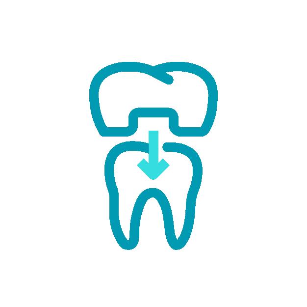 dentalofficepuurs-kroon-en-brugwerk